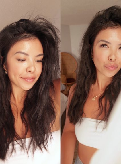 Under Eye Fillers – My Experience + Before & After