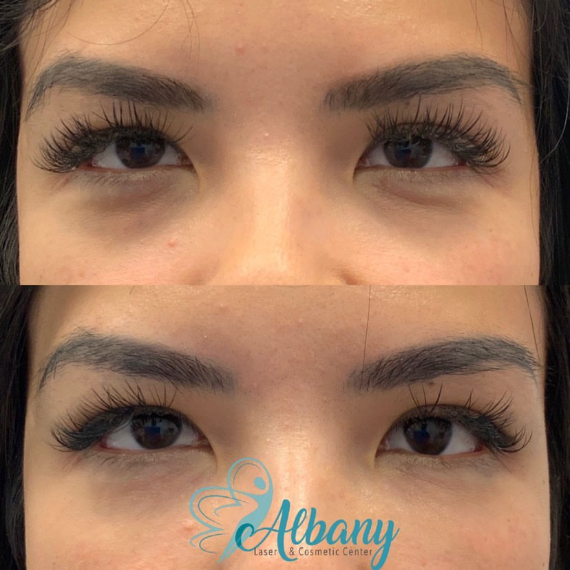Juverderm Under Eye Fillers with Dr. Kamal at Albany Cosmetics Laser Centre